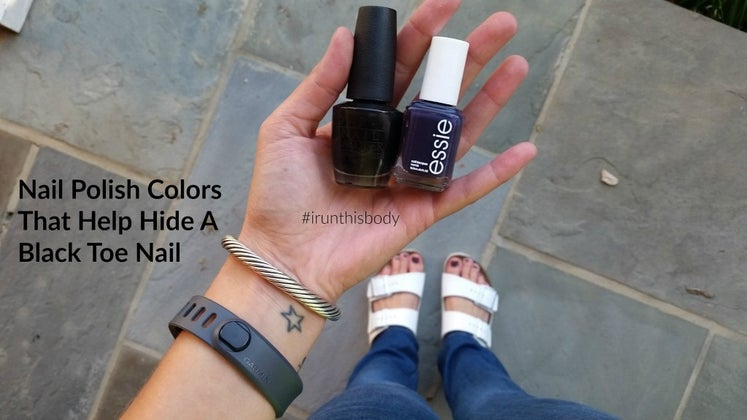 How To Prevent Black Toenails (Or Hide Them With Nail Polish ...