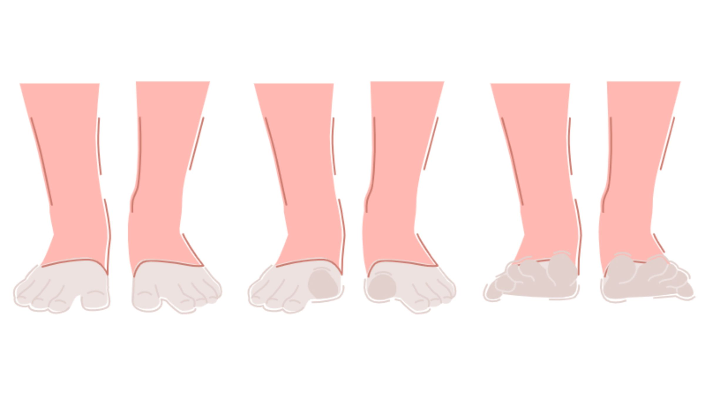 Active Toe Mobility